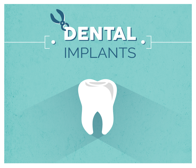Infography for dental implant