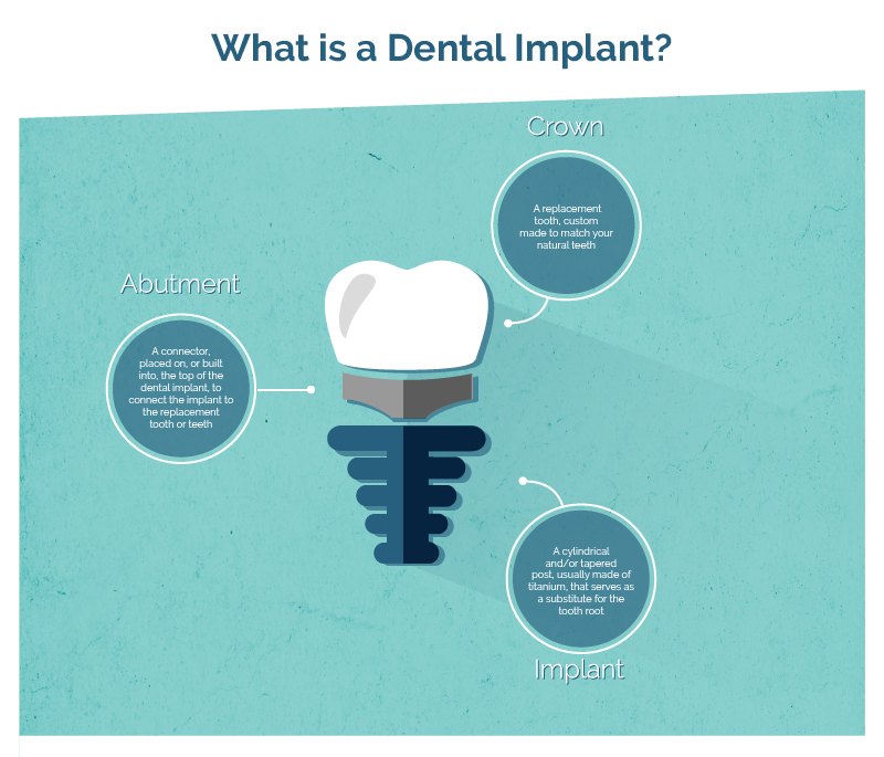 dental implant 3