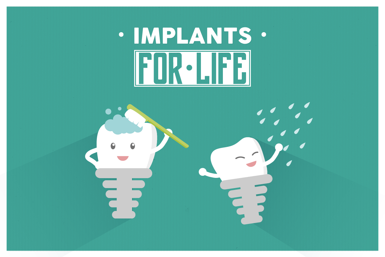 Whats the Dental Implant life duration?