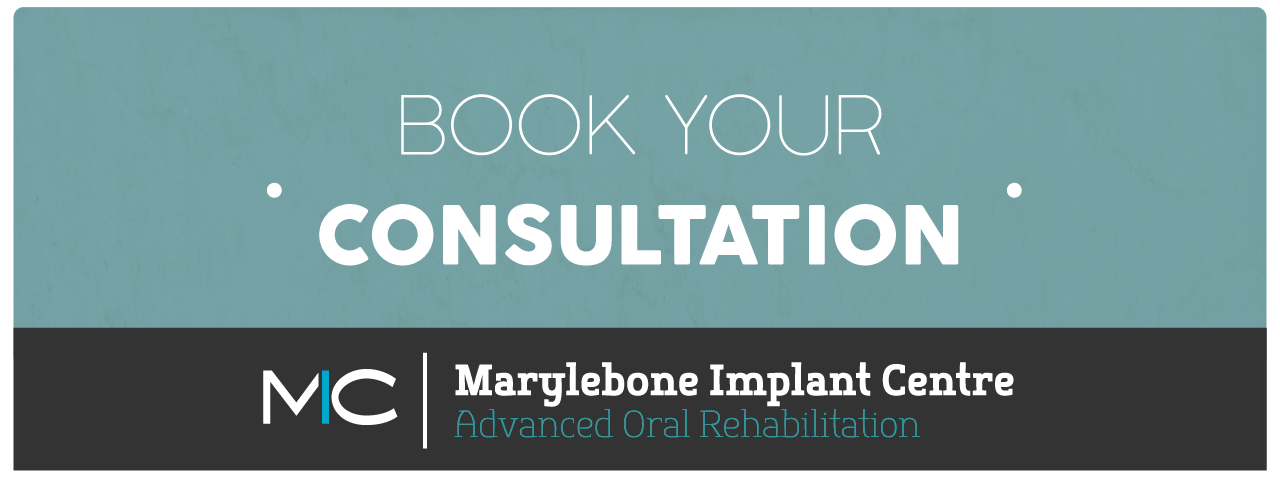 Marylebone_Dental_implants_checkup-04