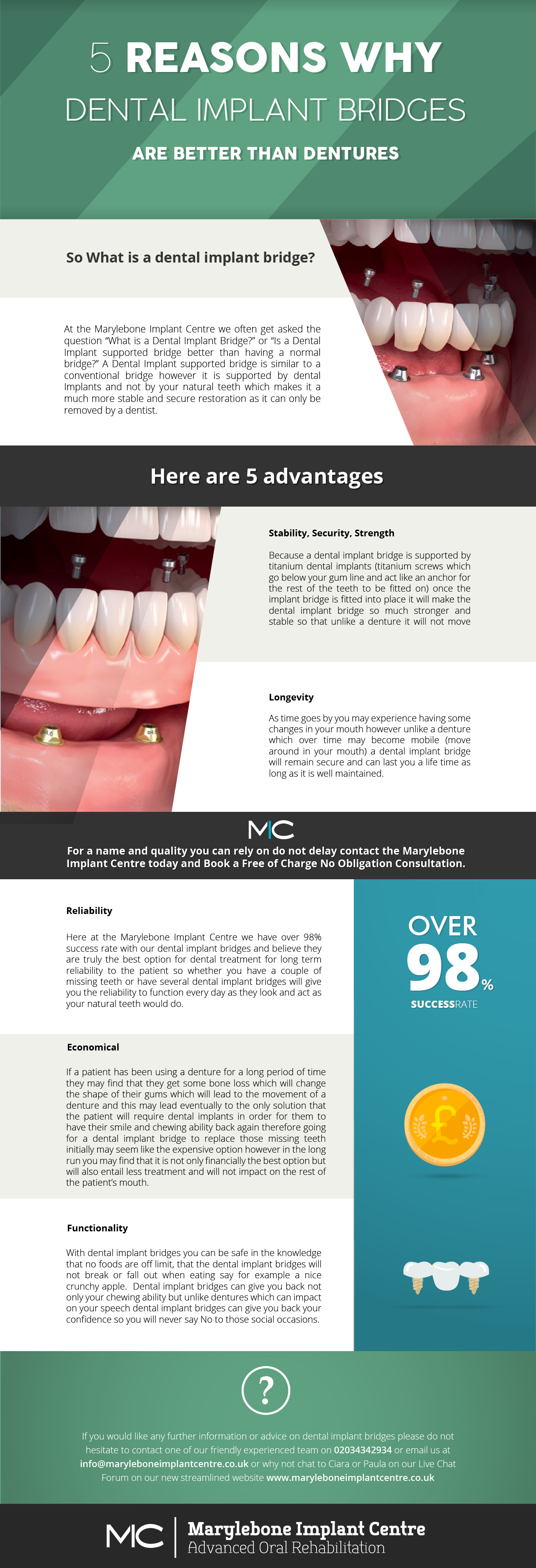 - 5 Reasons Why Dental Implant Bridges Are Better Than Dentures